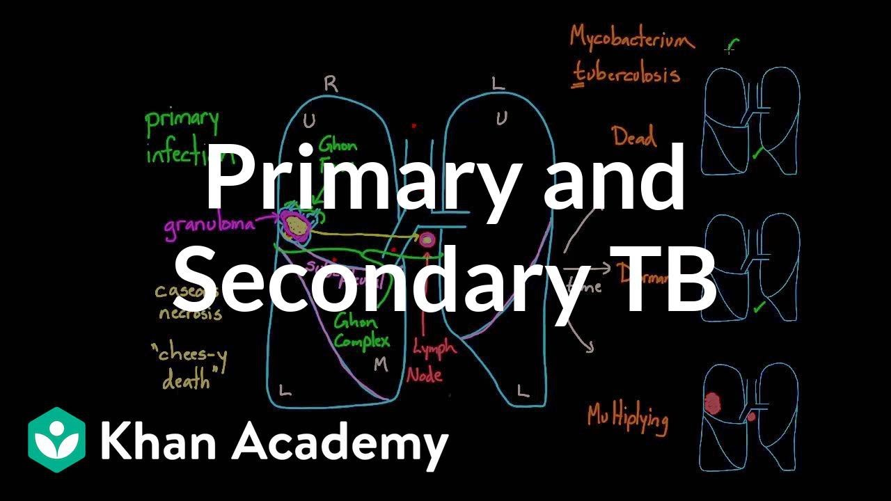 b2ec80d6f12 Primary and Secondary TB (video) | Khan Academy