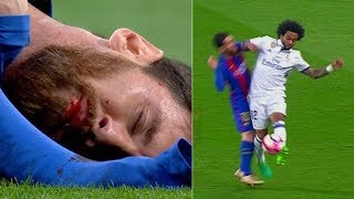 Самые страшные травмы в футболе 2018-2019. Ужасы футбола. Переломы травмы