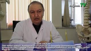YAŞAR CƏLİLOV. T.E.D. Travmatoloq-ortoped. Bel ağrılarının müalicəsi üsulları