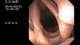 veterinary bronchoscopy 452 laryngeal paralysis standard poodle 11y
