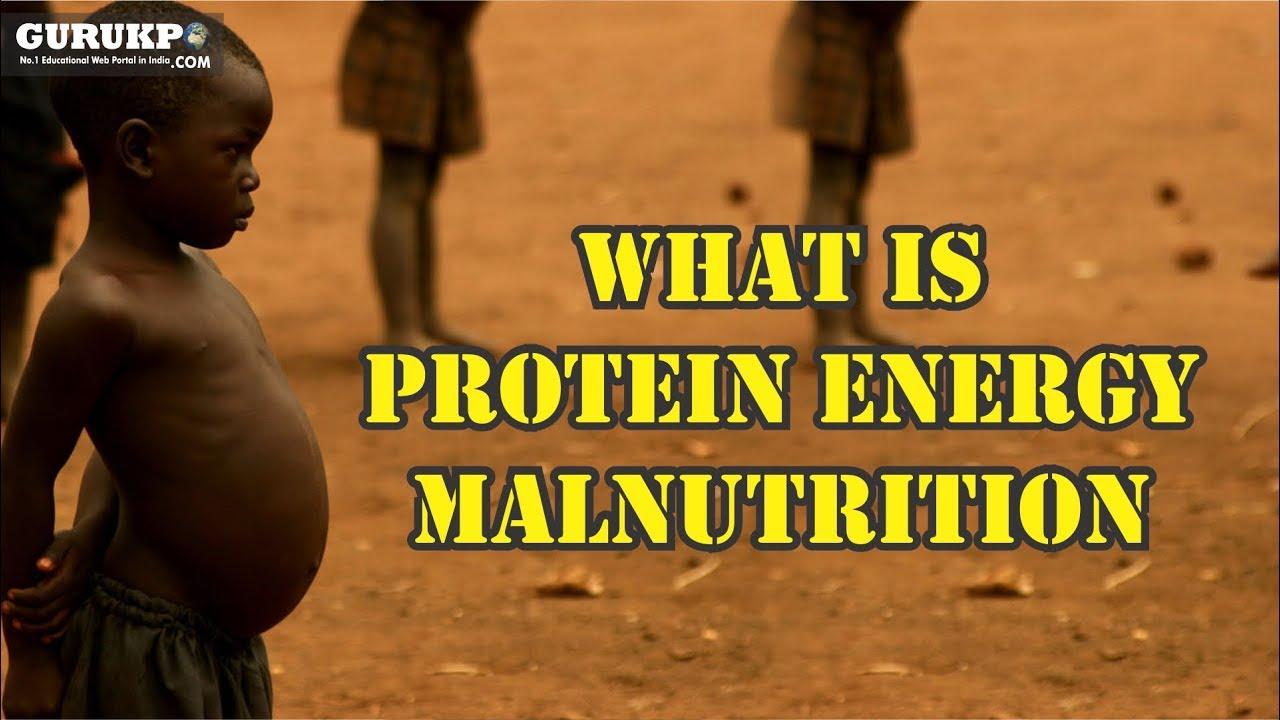 What is Protein Energy Malnutrition, (B Sc  Nursing) GuruKPO