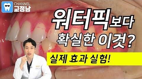워터픽(구강세정기) Vs 치간칫솔 비교실험! 충치, 잇몸병, 잇몸피를 예방해 봅시다.