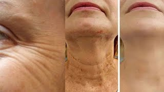 Straffe die Haut am Hals und entferne Falten mit diesen Methoden!