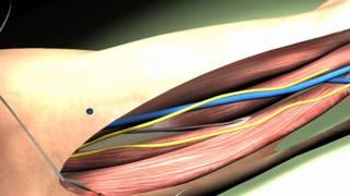 Prima mano bionica made in Italy che 'sente' gli oggetti
