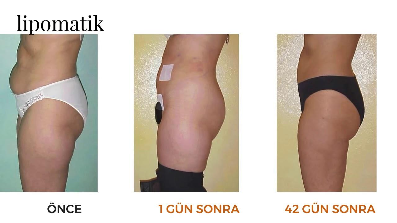 Lipomatik Ile Liposuction Lipomatik