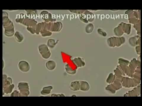 кровь фото под микроскопом