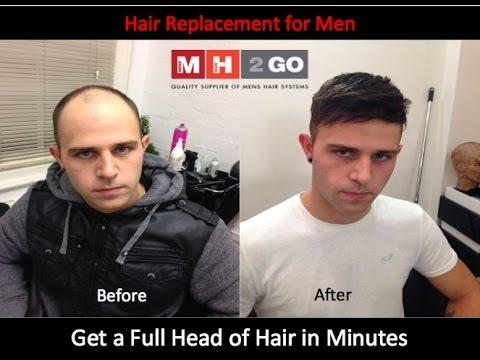 Men S Hair Replacement Hairloss Baldness Hair Wigs