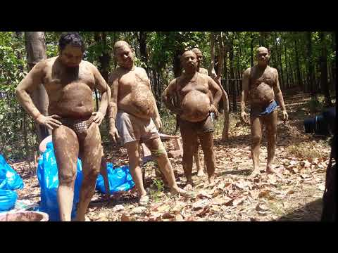 mud therapy in naturopathy camp