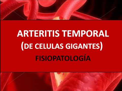 temporal arteritis treatment with steroids