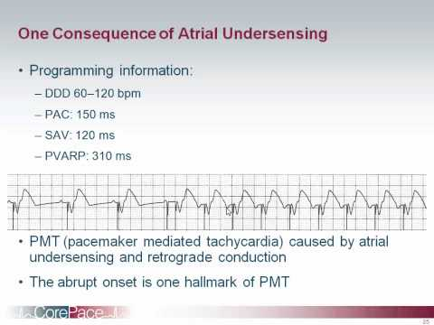 Pacemaker Troubleshooting