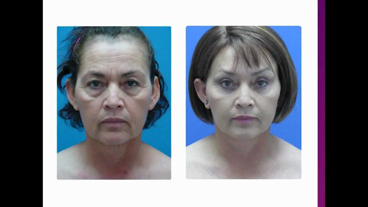 Cirugia Cosmetica: Ritidectomia y Blefaroplastia ...