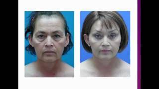 """Cirugia Cosmetica: Ritidectomia y Blefaroplastia """"Estiramiento Facial"""""""