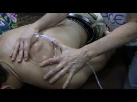 Massage Cupping Therapy How To See Fascia Adhesions Using Large Massage Cupping Sets