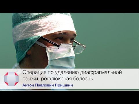 Операция по удалению диафрагмальной грыжи, рефлюксная болезнь. Врач-хирург, Пришвин А.П.