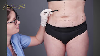 What to ask your surgeon before your tummy tuck surgery