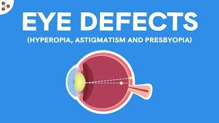 rövidlátás myopia hyperopia strabismus gyermekekben és serdülőkben)