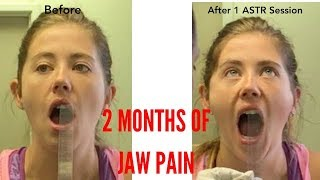 Unbelievable Treatment Chronic TMJ/Jaw Pain! (THIS WORKS!!)