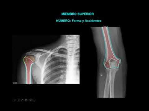 Anatomia Radiologica MM/SS - YouTube