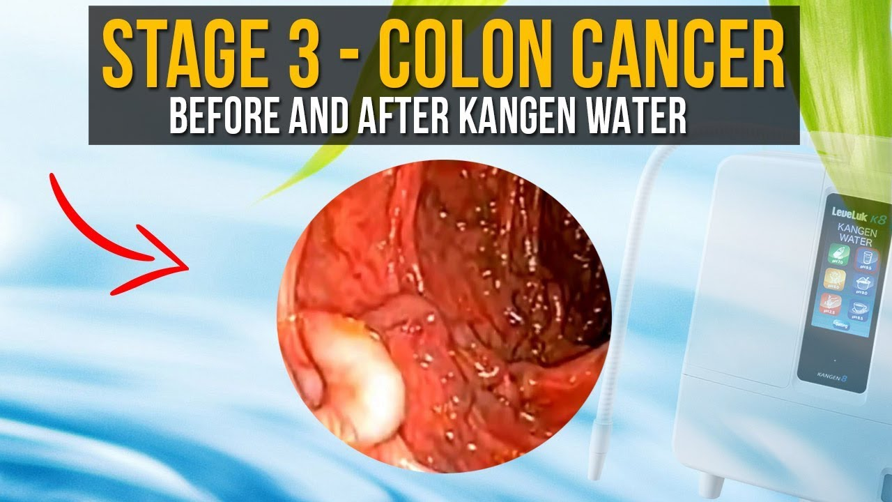 Stage 3 Colon Cancer Before And After Enagic Kangen Water Youtube