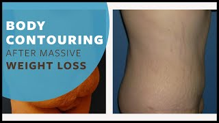 Body Contouring After Massive Weight Loss Austin and Round Rock, Texas