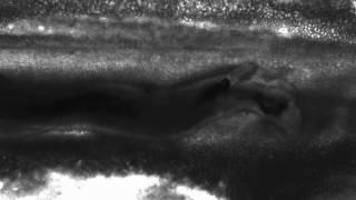 Schistosoma Mansoni live worm in Mesenteric veins