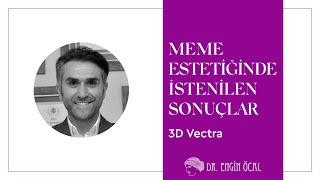 3d Vectra Meme Estetiği İntro