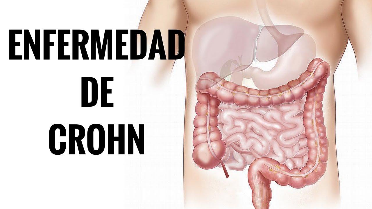 enfermedad de crohn dieta nutricional