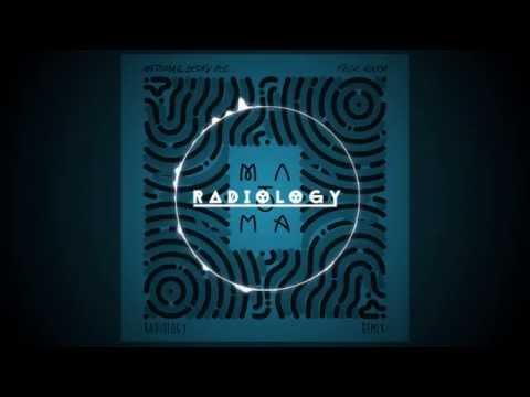 Matoma & Becky Hill - False Alarm (Radiology Remix)