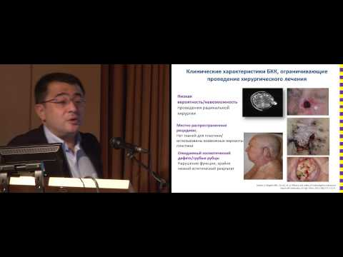 Базальноклеточный рак кожи. Новые возможности терапии