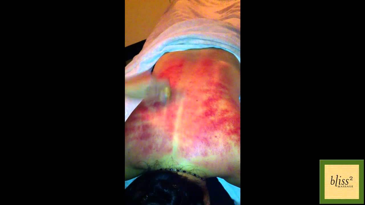 What Is Coining (a k a  Scraping or Gua Sha)? - Massage Monday #81