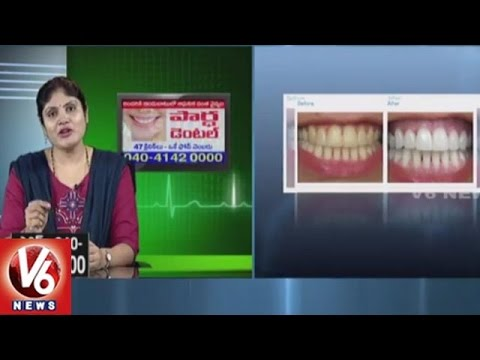Smile Designing Cosmetic Treatment | Partha Dental Hospital | Good Health | V6 News