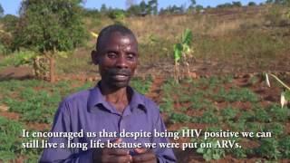 TC TB malawi