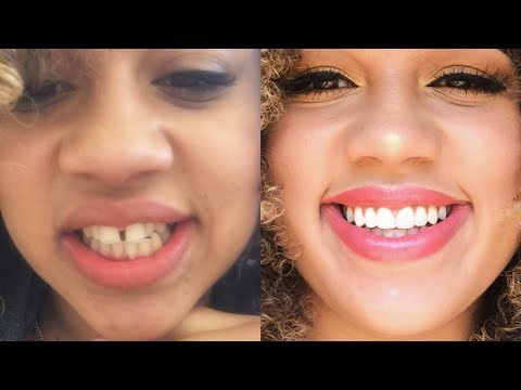 GETTING MY BRACES OFF!!(Before/After + Special Retainer for Gaps!)