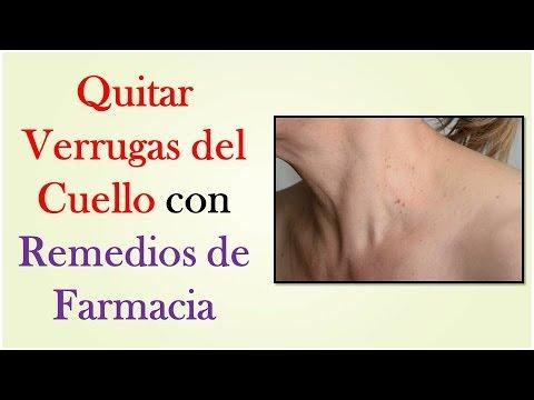 Quitar verrugas del cuello con remedios de farmacia for Productos para eliminar pececillos de plata