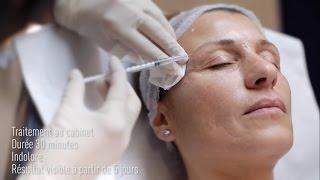 Consultation de médecine esthétique avec le Dr Rajaonarivelo pour retrouver un visage serein