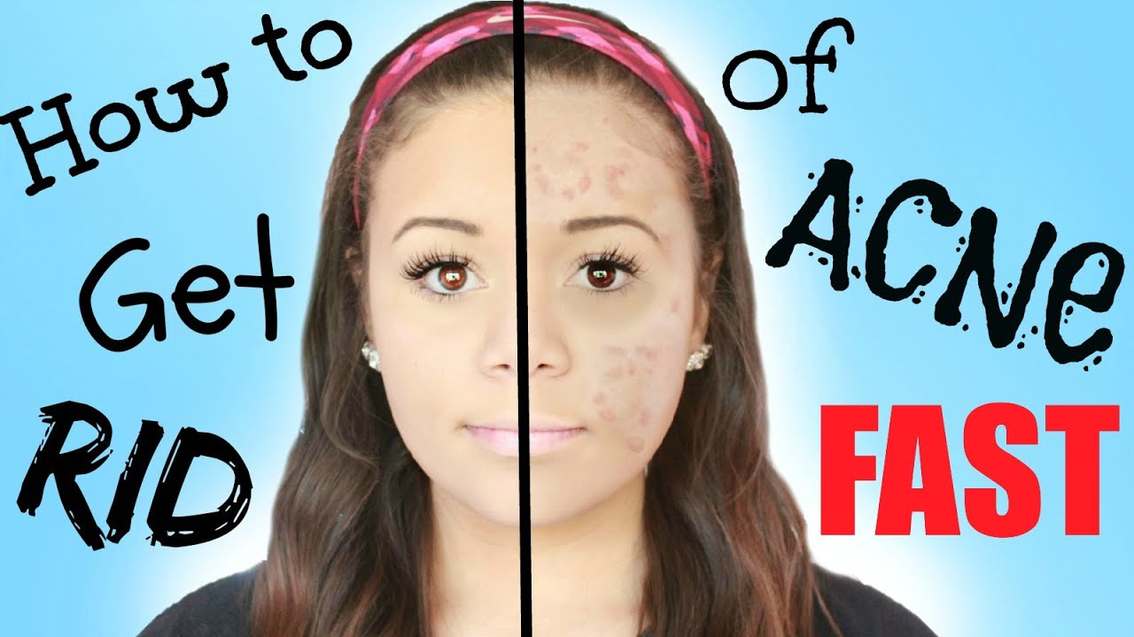 How To Get Rif Of Acne Fast