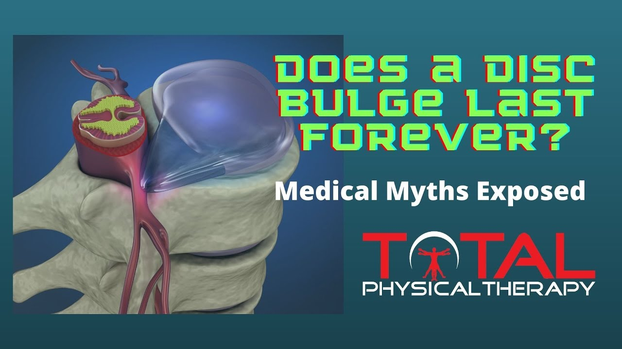 Does a Bulging Disc Last Forever?