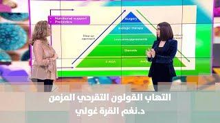 التهاب القولون التقرحي المزمن - د.نغم القرةغولي