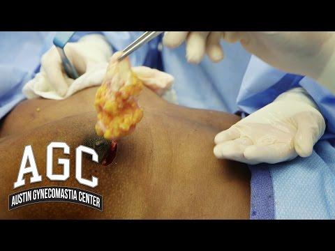 Gynecomastia Patient Narrates His Own Gyno Treatment - Austin Gynecomastia Center