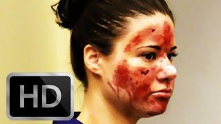 Acid In Face;  The Bethany Storro Story!  Sad and Tragic?