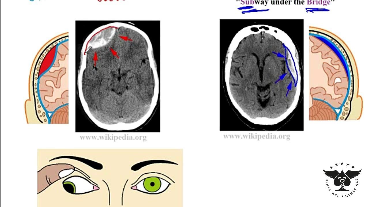 Hematoma subdural epidural hematoma vs Subdural hematoma