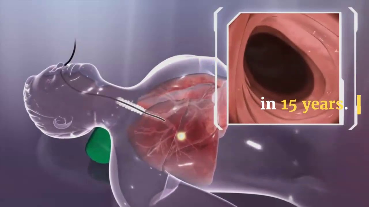 First Mesothelioma Treatment In 2011 The Fda Approved Youtube