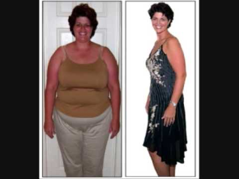 Medical weight loss louisiana