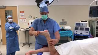 Severe Toe Walker ( Equinus)  Surgery