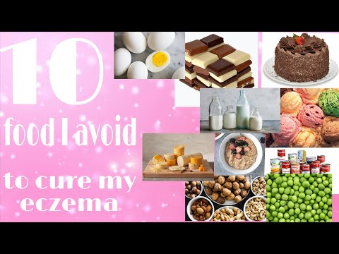 10 foods I avoid to cure my eczema||Eczema Journey || Life with deelii