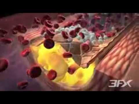 Epidemiology of Type 2 Diabetes