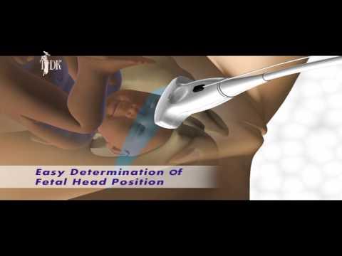 Ультразвуковая диагностика (УЗИ) во время беременности