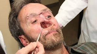 Repeat youtube video The Man With A Hole In His Face: Body Bizarre Episode 3