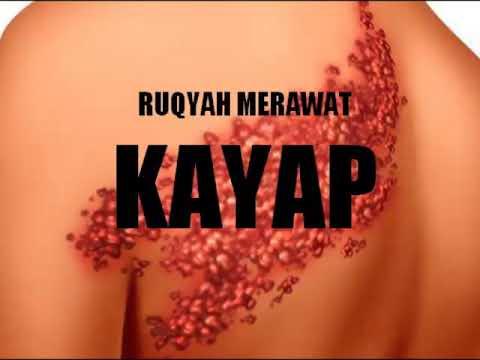RUQYAH SYAR'IYYAH MERAWAT KAYAP / RUQYAH TO HEAL SHINGLES