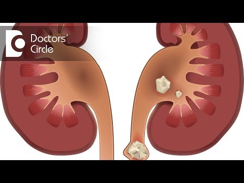 Are there any long term consequences of having a Kidney Stone?- Dr. Santosh Bethur